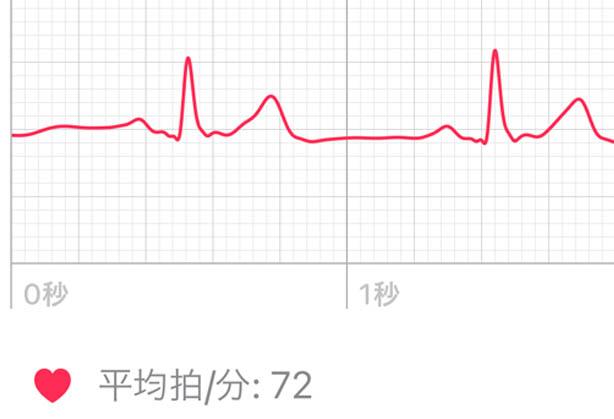 Apple Watchで心電図と心房細動チェック